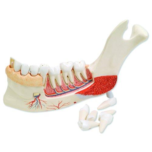 "3B Scientific VE290 19 Part Advanced Half Lower Jaw with 8 Diseased Teeth Model, 8.7"" x 12.6"" x 3.5"""