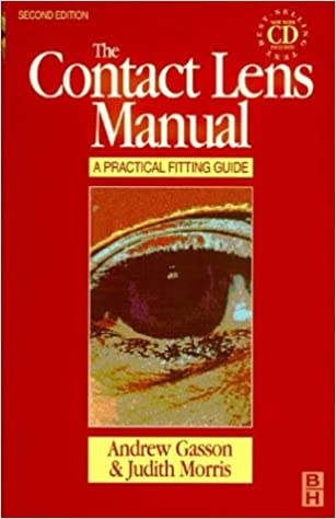 The contact lens manual: a practical guide to fitting: andrew.