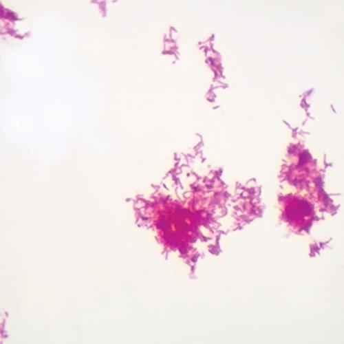 acid-fast-stain-wm-microscope-slide