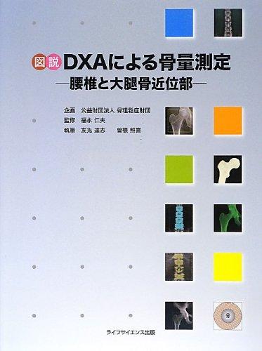 Read Online Zusetsu DXA ni yoru kotsuryo sokutei : Yotsui to daitaikotsu kin'ibu. PDF