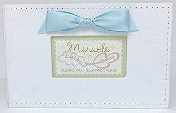 Amazoncom Miracle Ultrasoundsonogrampregnancy Brag Photo Book