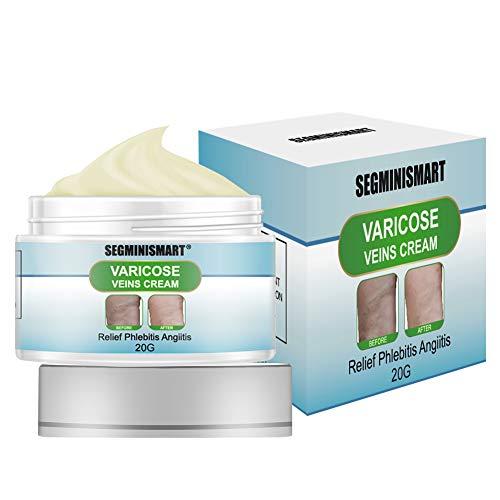 Varicose Cream,Varicose Veins Cream,Relief Phlebitis Angiitis Inflammation Blood Vein Veins Vasculitis Treatment Legs