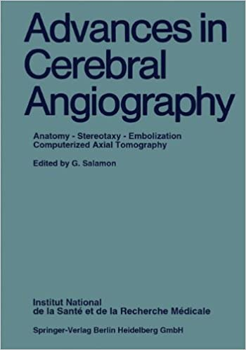 Buy Advances in Cerebral Angiography: Anatomy * Stereotaxy ...