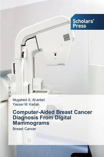 Download Computer-Aided Breast Cancer Diagnosis From Digital Mammograms ebook