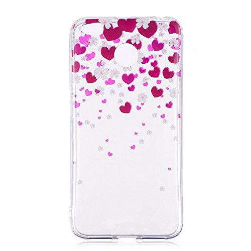 Xiaomi Redmi 4X Case, Ngift [Love] Slim Tpu Gel Flexible Soft Case Cover Skin Protective for Xiaomi Redmi 4X