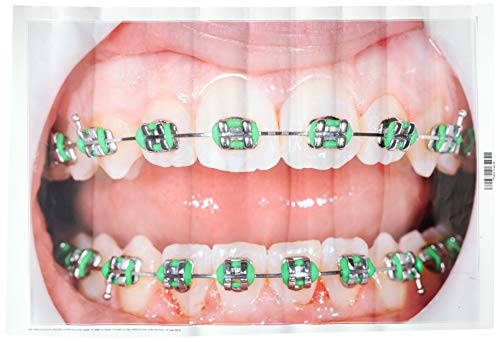 Wallmonkeys FOT-70318782-18 WM67208 Braces on Teeth Peel and Stick Wall Decals (18 in W x 12 in H), Small