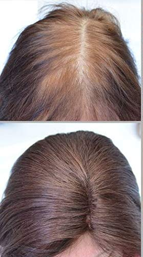 Full Shine Hair Toppers For Women With Thinning Hair 10 inch Darkest Brown  Color #2 Invisible Crown...