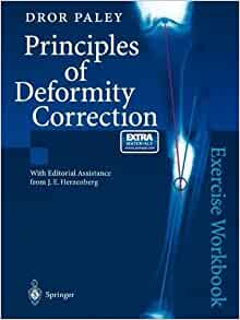 Principles of deformity correction dror paley