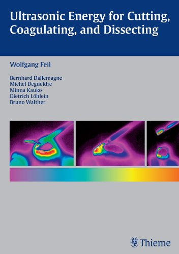 Ultrasonic Energy for Cutting, Coagulating and Dissecting -