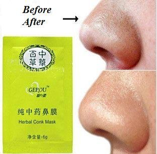 5 x Herbal Nose Pore Conk Mask Remove Blackheads Deep Cleansing Strips HealthCentre