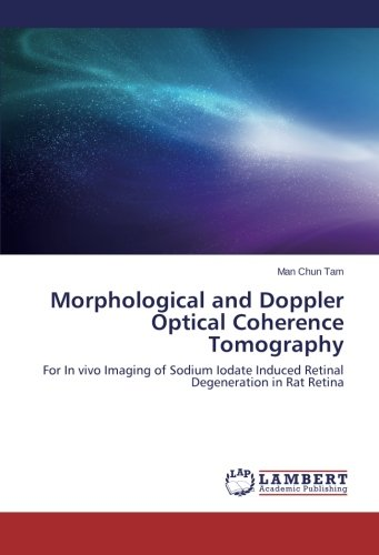 Morphological and Doppler Optical Coherence Tomography: For In vivo Imaging of Sodium Iodate Induced Retinal Degeneration in Rat Retina PDF ePub fb2 book