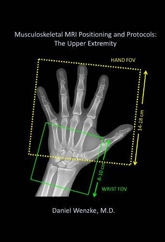 Musculoskeletal MRI Positioning and Protocols: The Upper Extremity