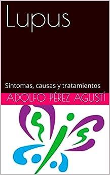 Lupus: Síntomas, causas y tratamientos (Tratamiento natural nº 73