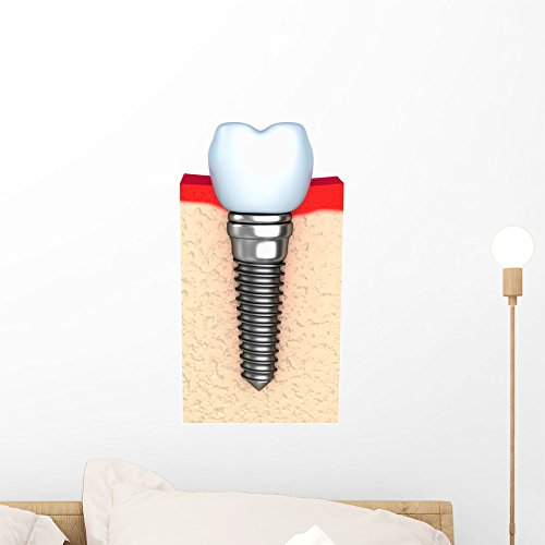 Wallmonkeys Dental Implant Jaw Bone Wall Decal Peel And Stick Graphic  18 In H X 12 In W  Wm83361