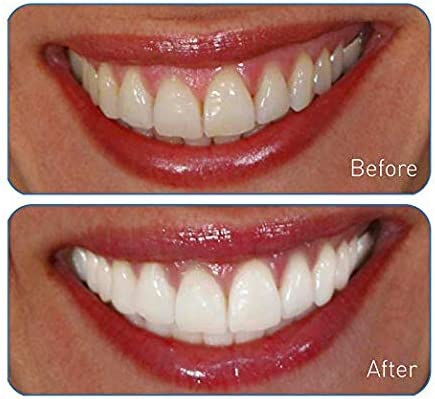 Go Smile Ultimate 2-In-1 Teeth Whitening System: Teeth Whitening Gel +  Teeth Whitening Light For Healthier & Brighter Teeth | Instant Results,  Safe On