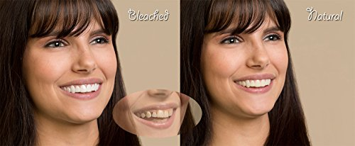 Imako Cosmetic Teeth for Women 1 Pack. (Small, Bleached) Uppers Only- Arrives Flat. Fit at Home Do it Yourself Smile Makeover! by Imako (Image #5)
