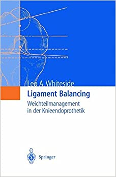 Book Ligament Balancing: Weichteilmanagement in der Knieendoprothetik (German Edition)