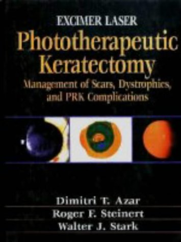 Excimer Laser Phototherapeutic Keratectomy: Phototherapeutic Keratectomy