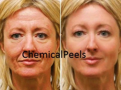 20 tca home chemical peel instructions with pictures.