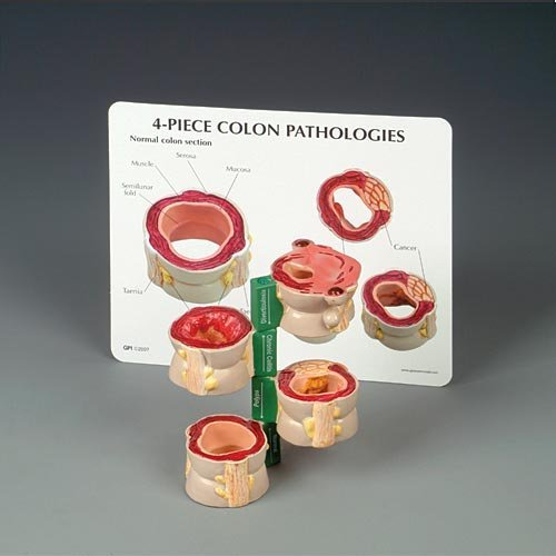 Colon Model 4-piece Set with Pathologies