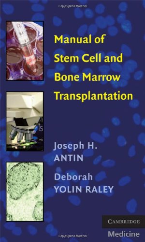 Manual of Stem Cell and Bone Marrow Transplantation (Cambridge Medicine) Pdf