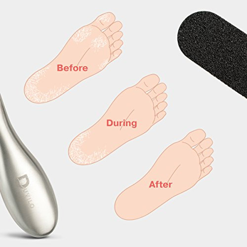 Foot Rasp Foot File And Callus Remover, Shaver, Pedicure Foot File Cuticle Cutter and Corn Remover Pedi tool To Remove Hard Skin, by Duvilo (Image #4)