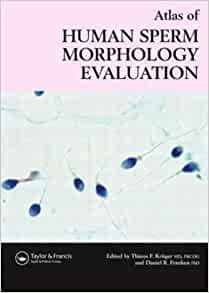 Evaluation human morphology sperm Atlas