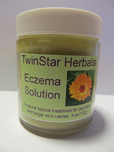 Eczema Solution 4 oz works great on psoriasis, babies eczema, soothes skin rashes!