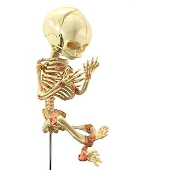 Asylum Zone Sleeping in Utero Baby Fetus Fetal Skeleton Oddity Gaff