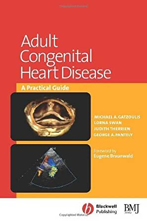 Amazon.com: Adult Congenital Heart Disease: A Practical