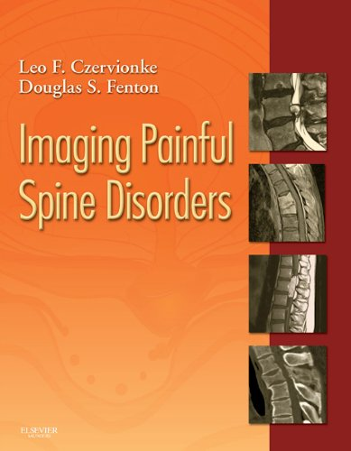 Imaging Painful Spine Disorders Pdf