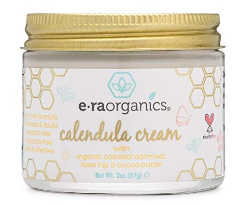 Calendula Rash & Baby Acne Cream - Extra Soothing Moisturizing Cream For Baby Eczema, Cradle Cap, Baby Rashes & More With Aloe Vera, Hemp Seed Oil, Rosemary, Zinc Oxide & More 2oz Era-Organics