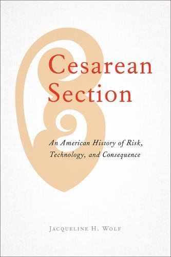 Cesarean Section: An American History of Risk, Technology, and Consequence