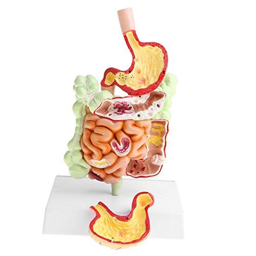 [해외]호 일 미니 1 시간 인간 대 장 위 병리학 모형 디스크 실험실 학습 장비 / Homyl Minified 1 Time Human Large Intestine Stomach Pathology Model Disc Laboratory Learning Equipment