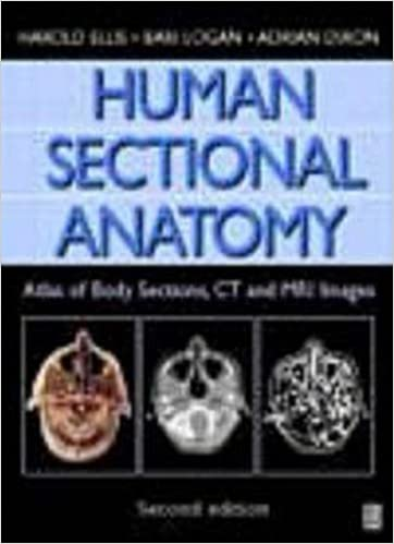 Human Sectional Anatomy, 2Ed: Atlas of Body Sections, CT and MRI ...