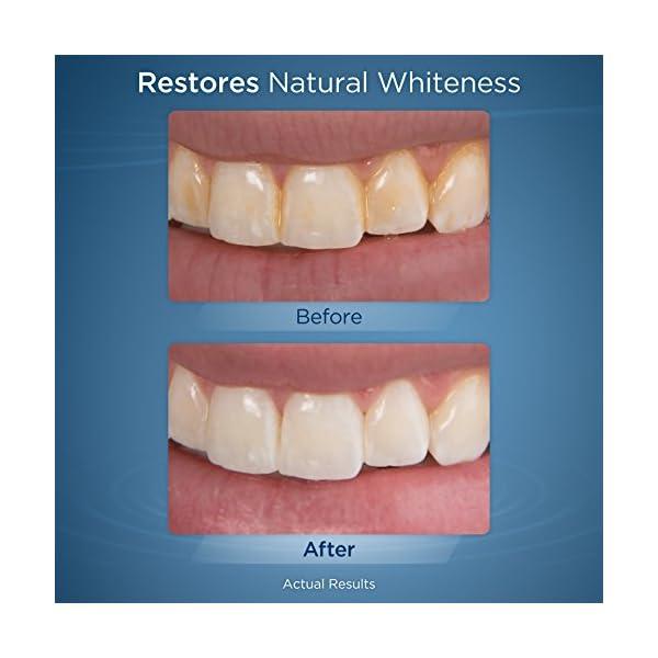 Waterpik WF-05EU Idropulsore Sbiancante Irrigatore Orale Dentale 2