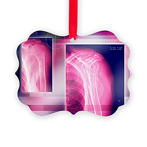 Bone Christmas Tree Ornament (CafePress - Broken Collar Bone, X-Ray - - Christmas Ornament, Decorative Tree Ornament)