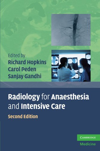 Radiology for Anaesthesia and Intensive Care, Second Edition (Cambridge Medicine -