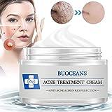 Best Acne Creams - Acne Treatment, Acne Removal Cream, Pimple Treatment, Face Review