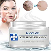 BUOCEANS Acne Treatment is a powerful and soothing solution for acne and removal. It is formulated with the highest quality ingredients , it Is healthy and natural appearance. It also helps regulate a healthy balance of oil on the skin and re...