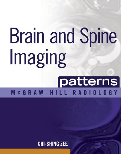 Download Brain and Spine Imaging Patterns: BRAIN & SPINE IMAGING (EBOOK) (McGraw-Hill Radiology) Pdf