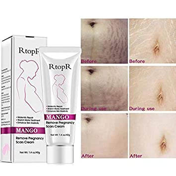 Rtopr Mango Stretch Marks Cleansing Cream Remove Scars Pregnancy