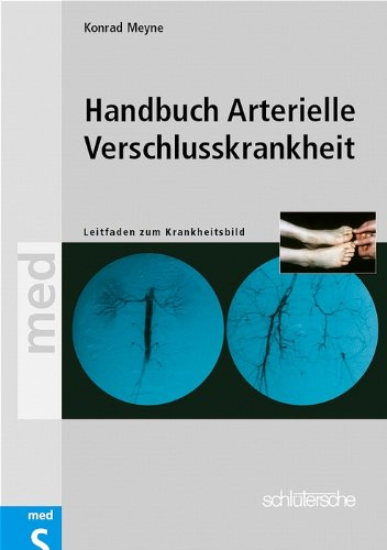 Handbuch Arterielle Verschlußkrankheit: Leitfaden zum Krankheitsbild der peripheren arteriellen Verschlusskrankheit, ihrer Erkennung und Behandlung