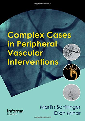 (Complex Cases in Peripheral Vascular Interventions)