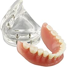 Dental Model Overdenture Inferior 4 Implants Demo for Teaching and Studying