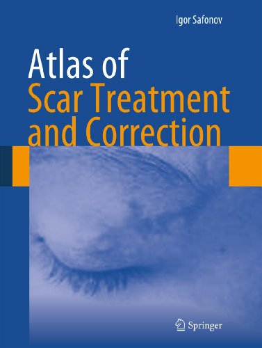 Atlas of Scar Treatment and Correction (Scar Top Acne Removal Rated)