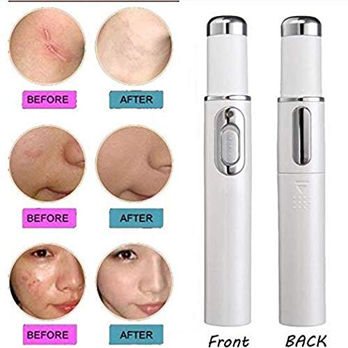 Bymlt Spider Vein Eraser Powerful Anti-varicose Veins Removal Pen Blue Light Machine For Anti-Inflammation, Acne Scar Removal, Improve Skin Elasticity,Skin Tightening Wrinkle Removal Treatment (White)