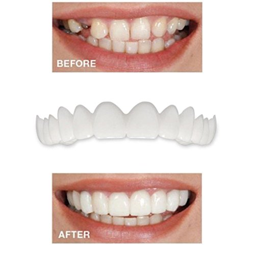 Price comparison product image GoodLock Clearance!! Temporary Smile Denture Teeth Comfort Fit Cosmetic Teeth Top Cosmetic Veneer 5Pcs