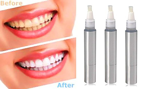 (Teeth Whitening 3 Pack Teeth Whitening Pen Set is the BEST Tooth Whitening Kit (Professional) Contains 3 Large Pens)