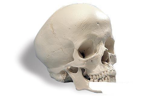 3B社 頭蓋骨模型 水頭症頭蓋モデル (a29-2)   B003Z2S7U0